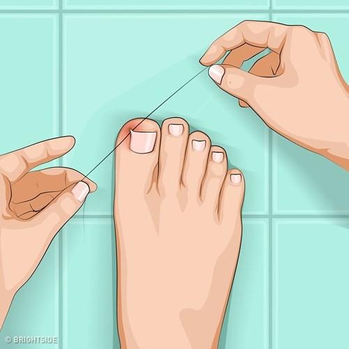 Những cách tự nhiên chữa móng chân mọc lệch đâm vào da thịt - Ảnh 6.