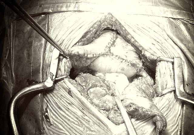 Phẫu thuật tạo hình bàng quang bằng ruột non cho bệnh nhân ung thư - Ảnh 1.