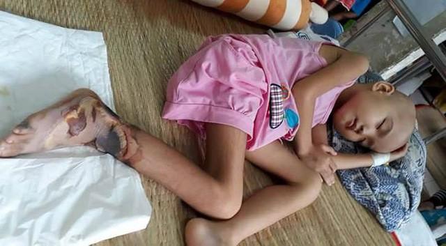 Thương bé gái người Tày vừa bị ung thư máu vừa hoại tử chân - Ảnh 3.