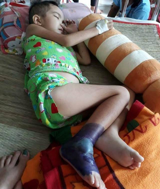 Thương bé gái người Tày vừa bị ung thư máu vừa hoại tử chân - Ảnh 4.