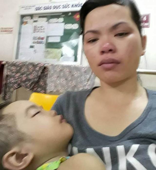 Thương bé gái người Tày vừa bị ung thư máu vừa hoại tử chân - Ảnh 7.
