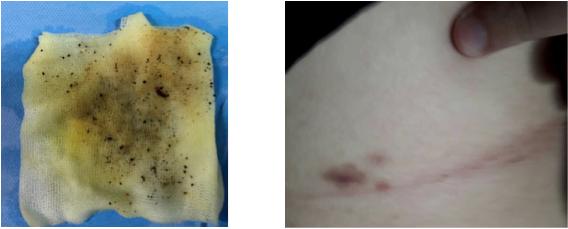 Tiến hành tán sỏi mật qua da cho một nam bệnh nhân - Ảnh 1.