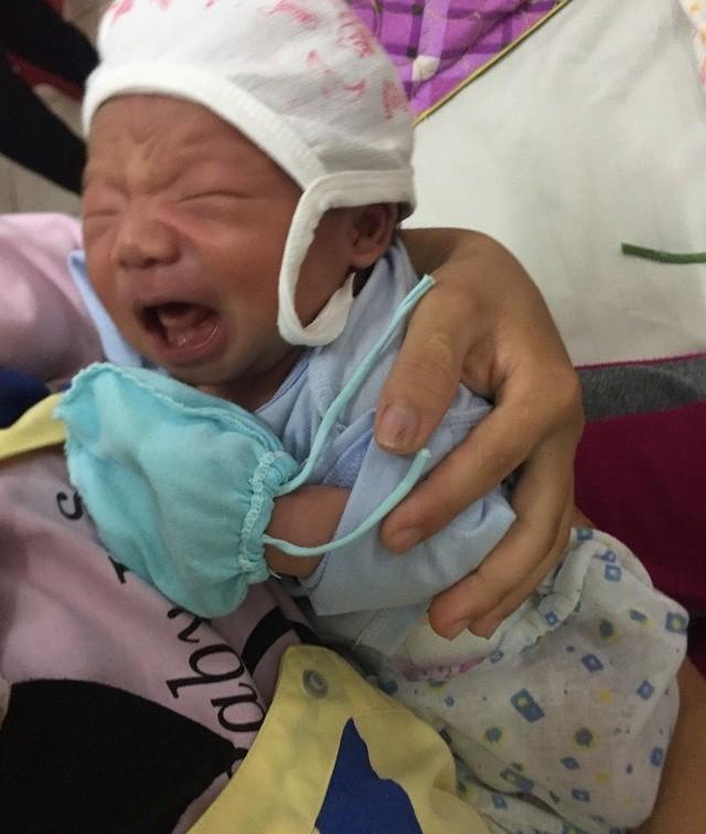 Thương bé 20 ngày tuổi thân hình tím tái vì bệnh tim bẩm sinh - Ảnh 2.