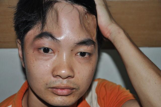 Nghẹn ngào em khuyết xương sọ đẩy xe lăn chăm anh trai bị liệt - Ảnh 1.