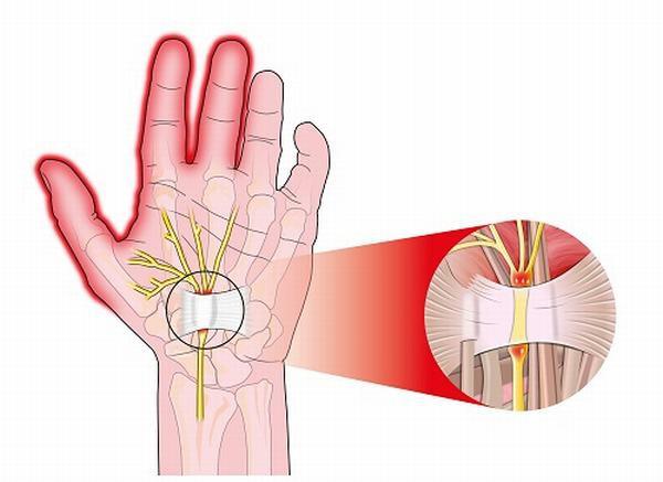 Đau đầu ngón tay: nguyên nhân, chẩn đoán và cách điều trị - Ảnh 1.