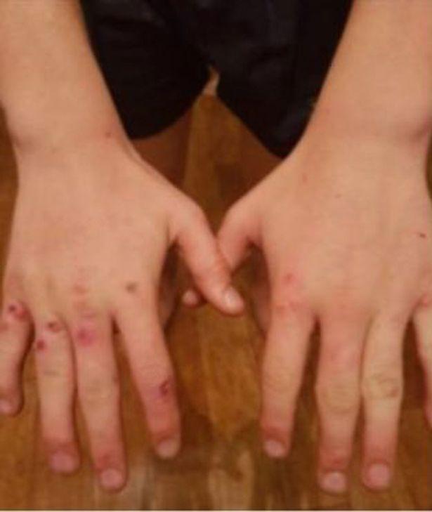Ca mắc bệnh đậu mùa đầu tiên trong hơn 10 năm do bị bê cắn - Ảnh 1.