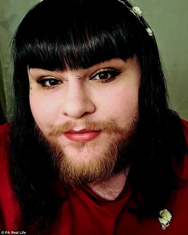 Cô gái nuôi râu tự tin xuất hiện trên sóng truyền hình - Ảnh 1.