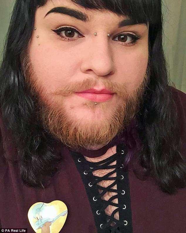Cô gái nuôi râu tự tin xuất hiện trên sóng truyền hình - Ảnh 2.