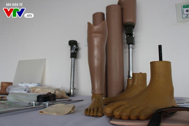 Bệnh viện Hữu nghị Lạc Việt: Lắp chân giả miễn phí cho thương bệnh binh và người khuyết tật - Ảnh 4.