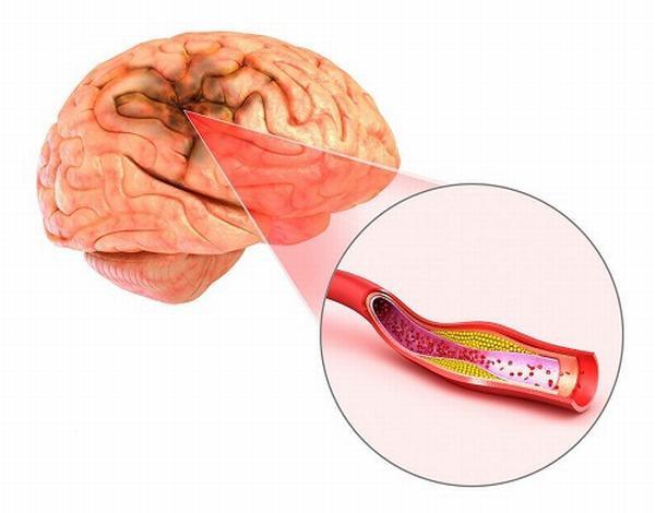 Giải đáp 6 thắc mắc thường gặp về cholesterol - Ảnh 1.