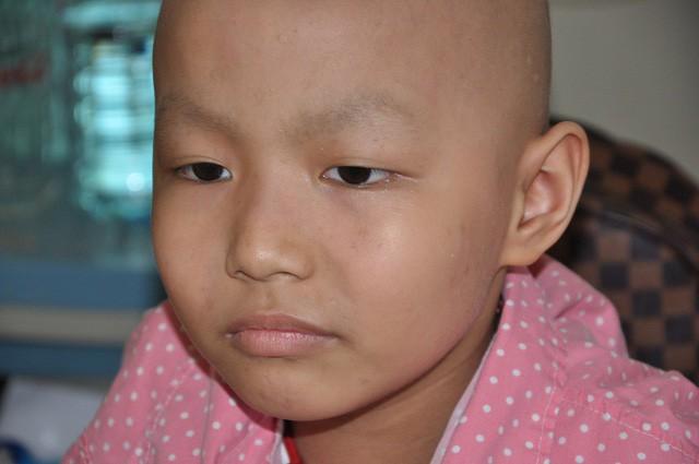 Đau đáu ánh mắt cậu bé 7 tuổi bị ung thư xương - Ảnh 2.