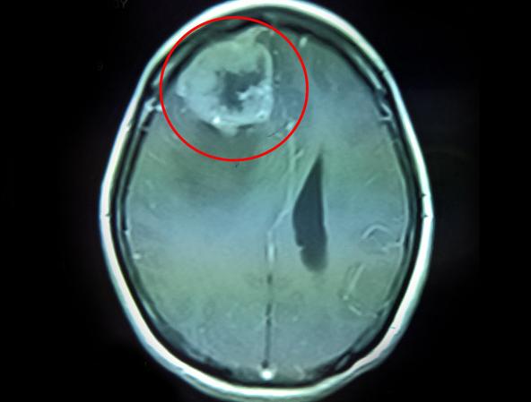 Lấy khối u não vùng trán cho bệnh nhân cao tuổi - Ảnh 1.