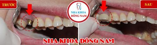 Bạn hiểu cấy ghép răng Implant là như thế nào không? - Ảnh 1.