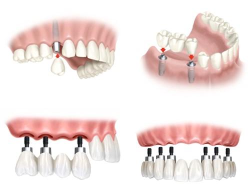Bạn hiểu cấy ghép răng Implant là như thế nào không? - Ảnh 2.