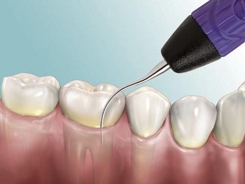 Những điều cần lưu ý khi lấy cao răng - Ảnh 1.