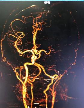 Mở nửa sọ giảm áp sớm cứu sống bệnh nhân đột quỵ nhồi máu não - Ảnh 1.