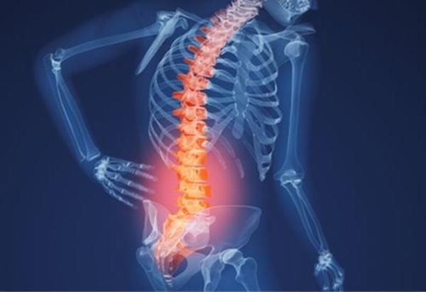 Nguyên nhân gây đau thắt lưng ở người cao tuổi - Ảnh 1.