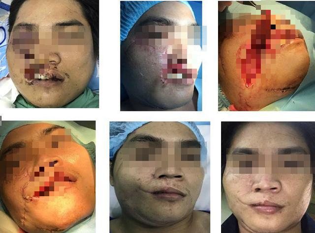 Tạo hình thành công cho nhiều bệnh nhân khuyết hổng vùng đầu mặt cổ - Ảnh 2.