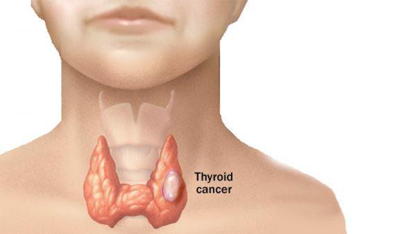 7 điều về ung thư tuyến giáp ai cũng cần phải biết, đặc biệt là nữ giới - Ảnh 1.