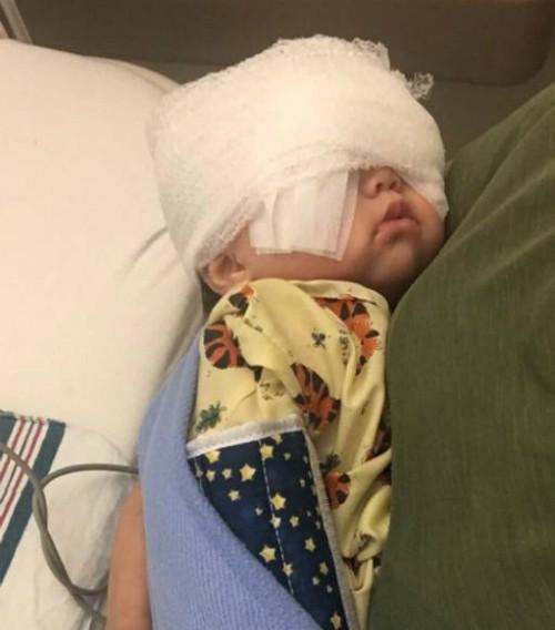 Căn bệnh khiến đôi mắt của em bé hai tuổi trở nên to tròn - Ảnh 1.