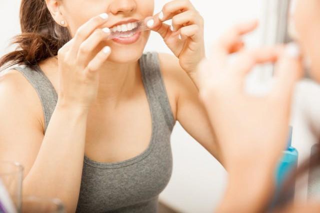 Những điều bạn nên biết về tẩy trắng răng - Ảnh 1.