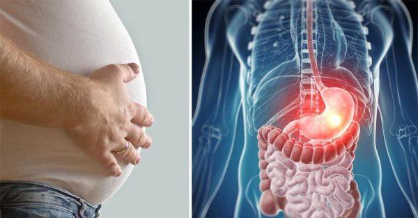 Cẩn trọng: Đầy hơi có liên quan tới nhiều bệnh ung thư - Ảnh 2.
