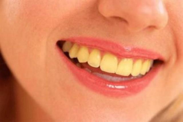 Vết ố cà phê trên răng: Nguy cơ và cách giải quyết - Ảnh 1.