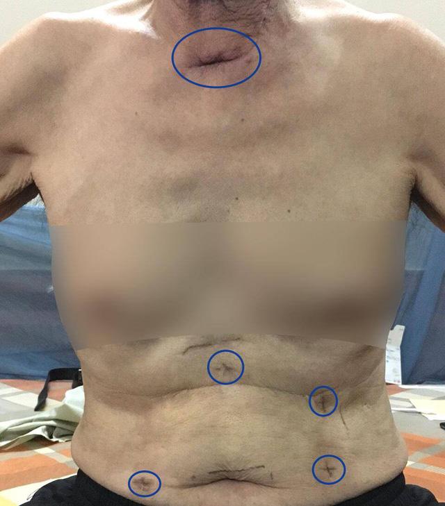 Phẫu thuật nội soi hoàn toàn - giải pháp mới cho bệnh nhân ung thư thực quản - Ảnh 1.