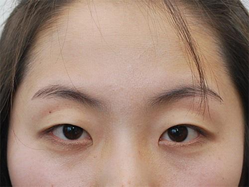 Mẹ chồng có làn mi cong vút nhờ con dâu và serum dưỡng mi Shinno - Ảnh 2.