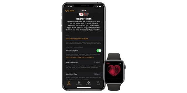 Apple Watch có thể mất tính năng phát hiện nhịp tim do kiện bản quyền? - Ảnh 1.