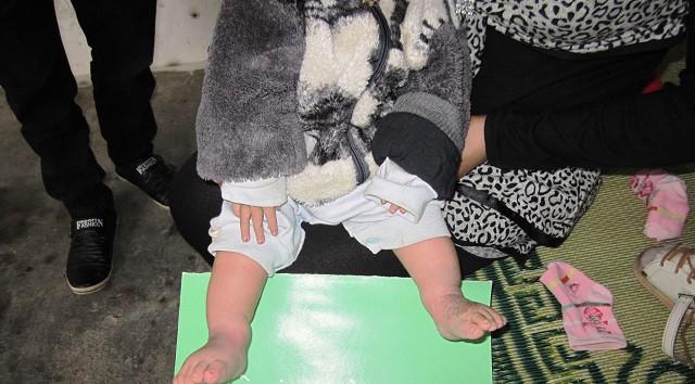 Cơ hội cho các trẻ mắc bệnh bàn chân khoèo bẩm sinh - Ảnh 1.