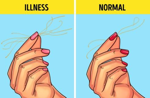 9 bài tự kiểm tra sức khỏe đơn giản - ảnh 4