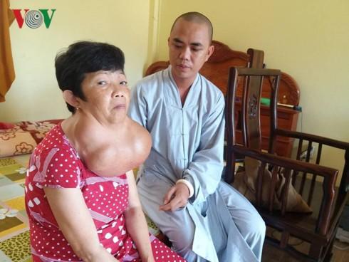 Người phụ nữ 35 năm mang khối bướu gần 10kg trên cổ - Ảnh 1.