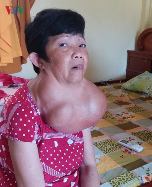 Người phụ nữ 35 năm mang khối bướu gần 10kg trên cổ - Ảnh 2.