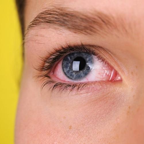 Những triệu chứng báo hiệu bạn có vấn đề nghiêm trọng về sức khỏe - Ảnh 1.