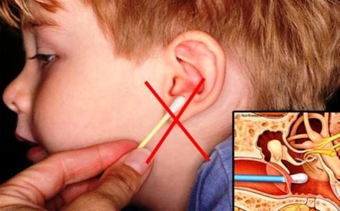 6 cách lấy ráy tai đơn giản và an toàn - Ảnh 1.