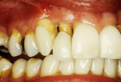 Những nguyên nhân khiến răng ê buốt - Ảnh 4.