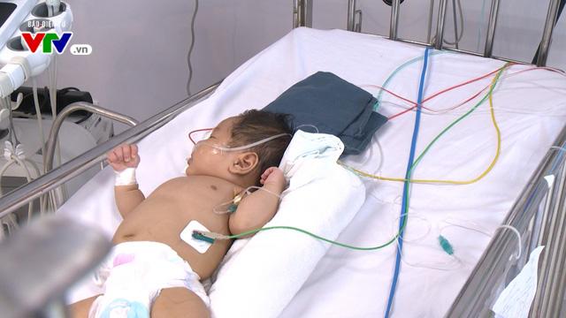 Bệnh nhi tim bẩm sinh phức tạp 2 tháng tuổi thoi thóp chờ sự giúp đỡ - Ảnh 1.