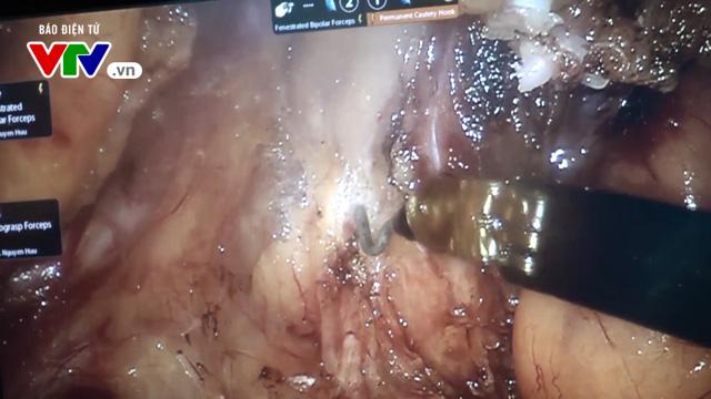 Phẫu thuật bằng Robot, mang lại nhiều hiệu quả trong điều trị ung thư - Ảnh 1.