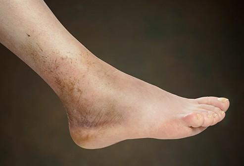 Những nguyên nhân khiến bàn chân bị sưng tấy - Ảnh 2.