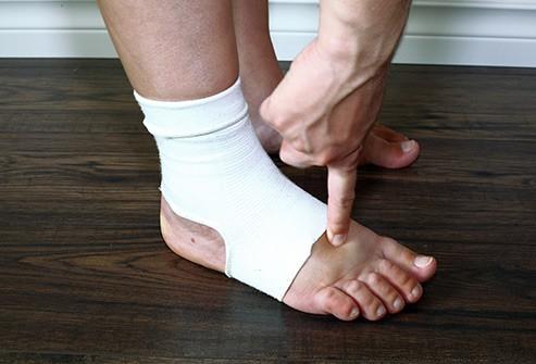 Những nguyên nhân khiến bàn chân bị sưng tấy - Ảnh 12.