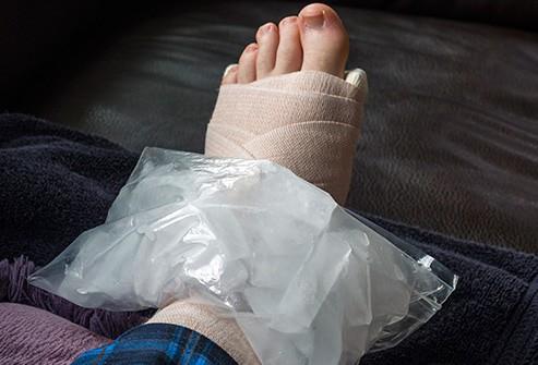 Những nguyên nhân khiến bàn chân bị sưng tấy - Ảnh 9.