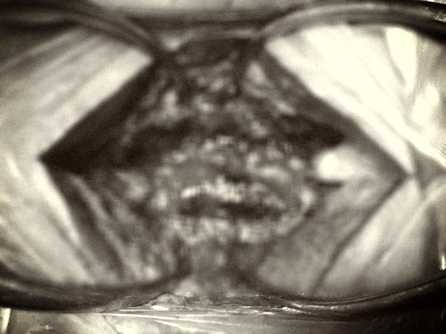 Tê liệt chân vì chữa thoát vị đĩa đệm bằng giác hơi - Ảnh 1.