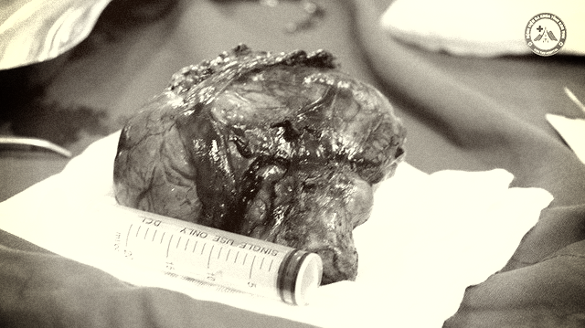 Kon Tum: Phẫu thuật thành công khối u tuyến giáp lớn nhất từ trước tới nay - Ảnh 1.