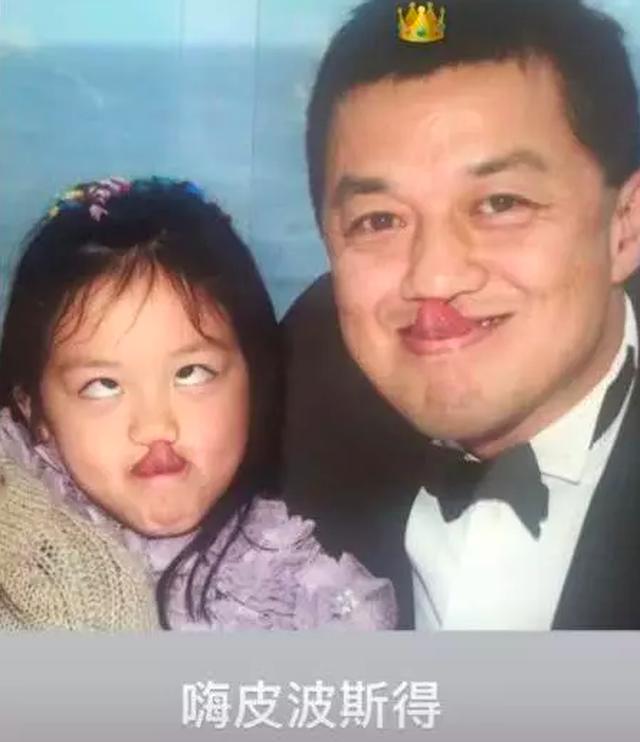 Tình cảm của người cha vĩ đại Lý Á Bằng dành cho cô con gái bị dị tật môi bẩm sinh - Ảnh 3.