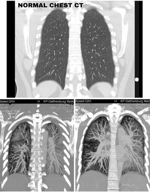 Lá phổi trắng đục của nữ sinh 19 tuổi hút thuốc lá điện tử - Ảnh 1.
