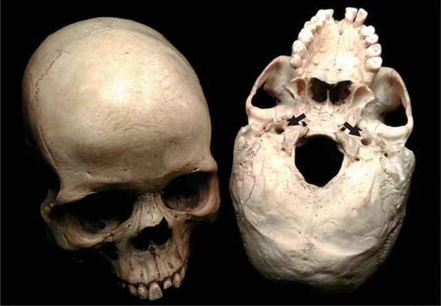 Kích thước bộ não không quyết định trí thông minh, mà chính là lượng máu lưu thông lên não - Ảnh 1.