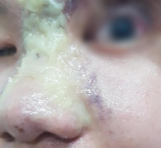 Thiếu nữ 15 tuổi mù mắt sau khi tiêm filler nâng mũi - Ảnh 1.