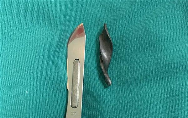 Bị mảnh kim loại đâm xuyên khớp háng khi cắt cỏ bằng máy trong vườn - Ảnh 2.