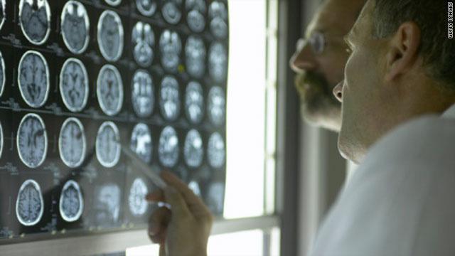 Tiếng ồn làm tăng nguy cơ sa sút trí tuệ ở người lớn tuổi - Ảnh 1.